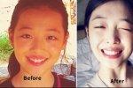 15 เซเลบคนดังเกาหลีที่เคยประสบปัญหาเรื่องฟันไม่สวยมาก่อน!